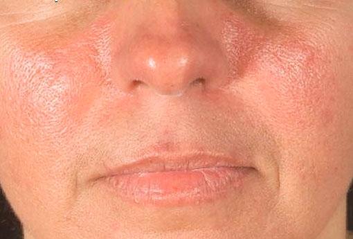 Характерная сыпь на лице - «бабочка»