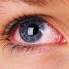 Красные глаза — 10 основных причин покраснения белка (склера)